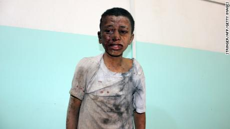 A Yemeni child injured in Thursday's airstrike on a schoolbus.
