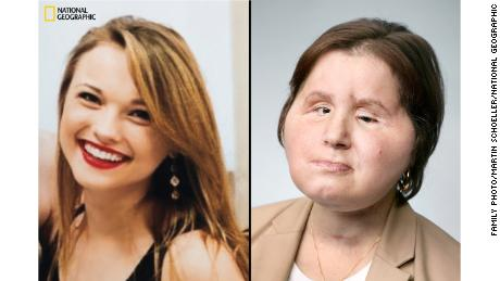 At left, Katie Stubblefield at 17, eight months before attempting suicide. At right, Katie at 22, one year and one month after her surgery.
