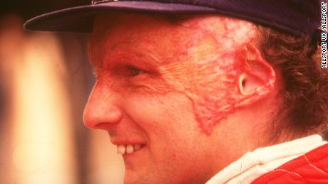 Lauda had undergone a lung transplant in August