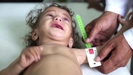 A country in freefall, with half its population at risk of famine. All because of an avoidable war