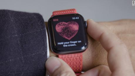 Apple Watch app could detect life-threatening irregular heartbeat, study says