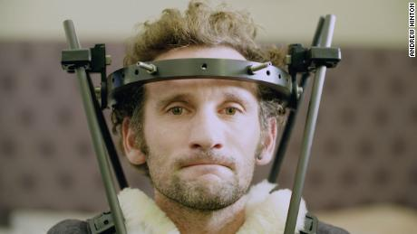 After breaking his neck, Tim Don was fitted with a halo in hopes of having a quicker recovery.