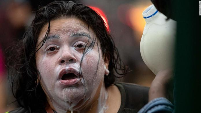 Milk is poured on the face of a protester who had been exposed to tear gas in Minneapolis on May 26.