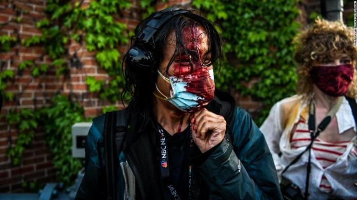 Visual journalist Ed Ou is seen bleeding after police fired tear gas and rubber bullets in Minneapolis on May 30.