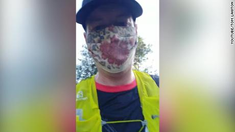 A doctor walks 22 miles in a face mask to prove they are safe