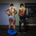 02 afghan journalists injuries 0908 RESTRICTED