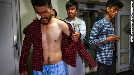 'I thought it was the end of my life:' Afghan journalist describes brutal beating by Taliban