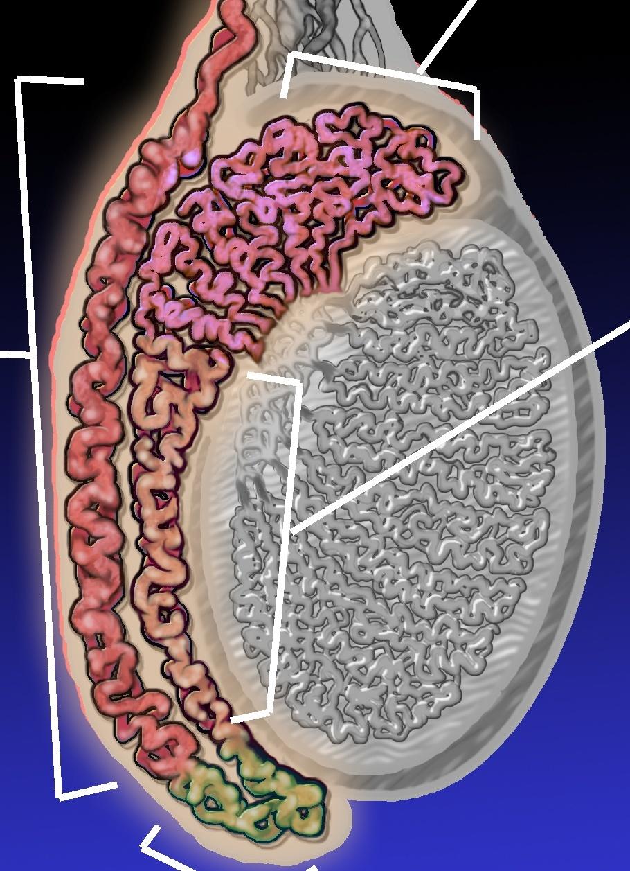 hight resolution of epididymitis diagram