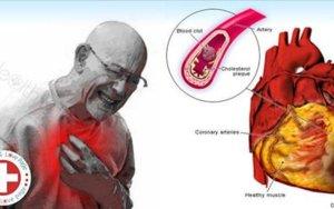 Se você mudar estes 5 hábitos, pode reduzir o risco de ataque cardíaco em 80%