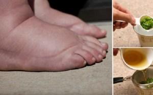 Este é o melhor remédio caseiro para pés e pernas inchados