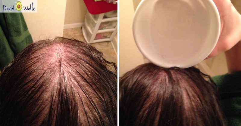 How To Use Coconut Oil To Prevent Graying Balding Hair