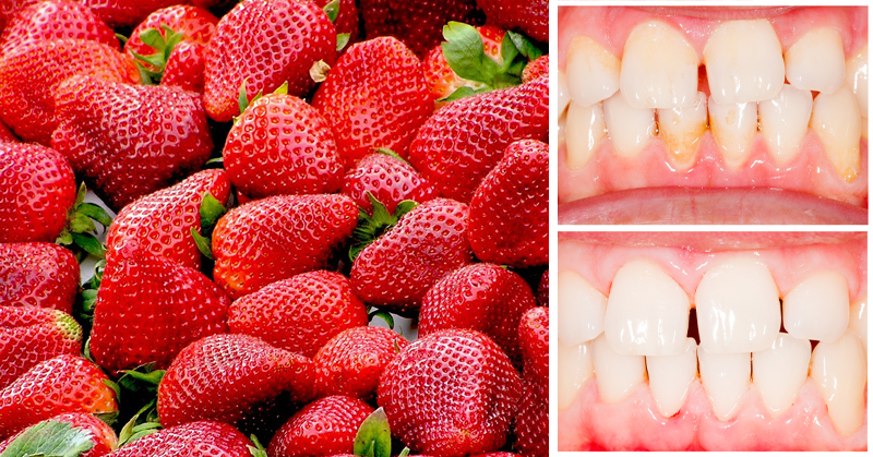 Remove Tartar Buildup FAST With These 3 Natural Ingredients