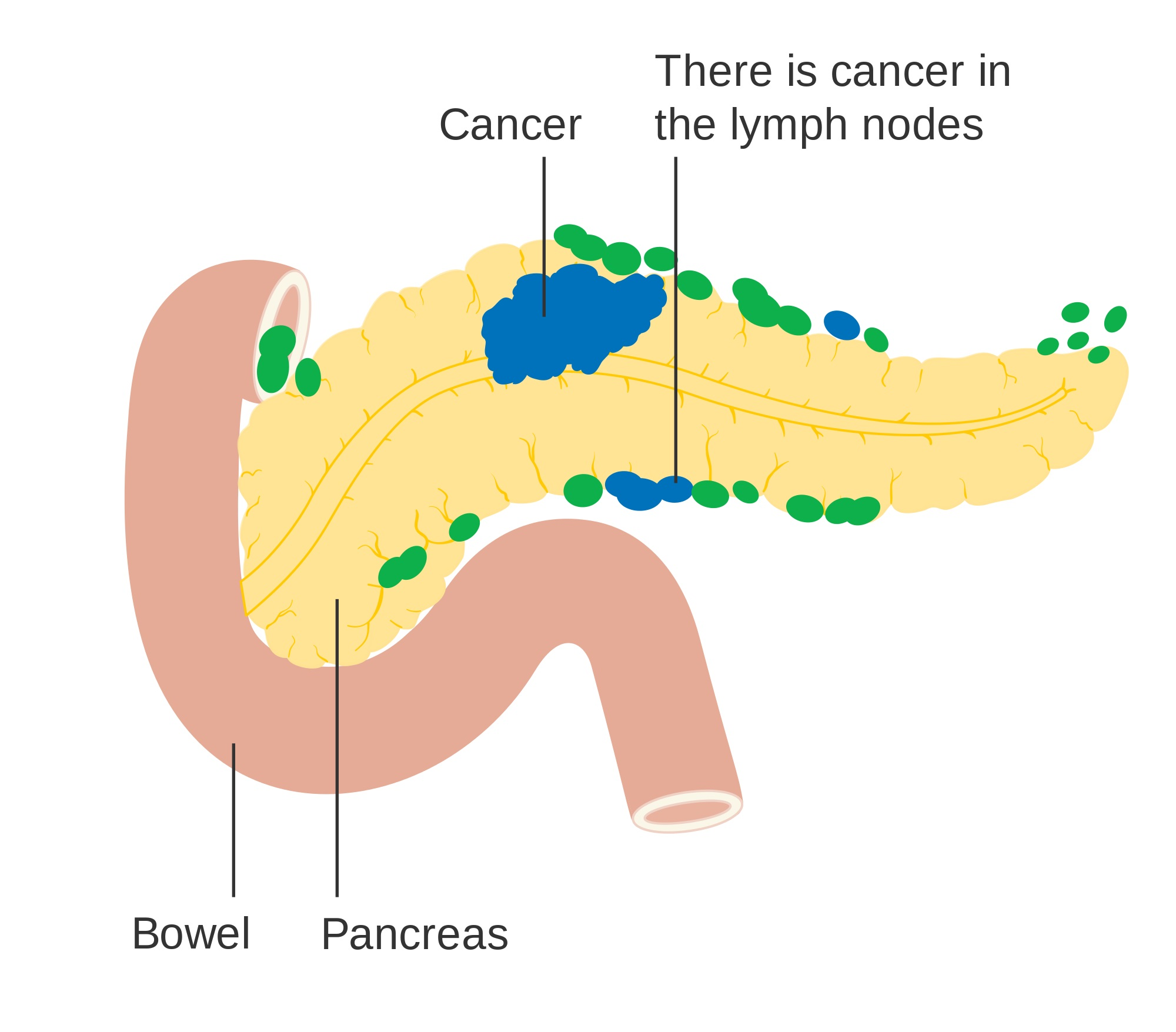 dog lymph nodes diagram 2006 mustang fuse box a diabetes diagnosis may be first symptom of pancreatic cancer