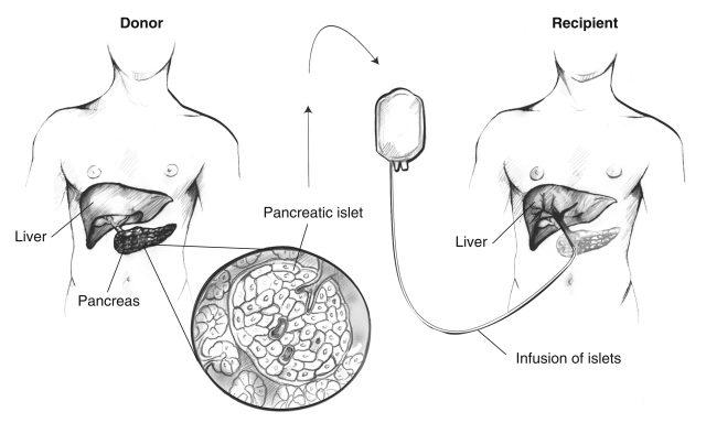 Study: Islet Transplant Helps Type 1 Diabetes Patients