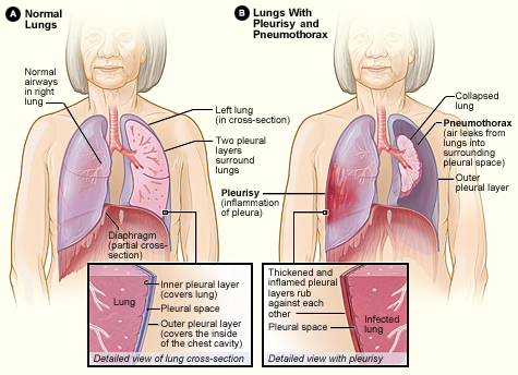where are your lungs located in back diagram berlingo wiring difference between rales and rhonchi |