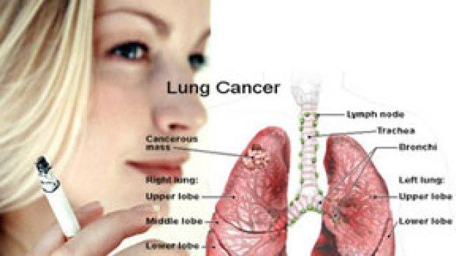 10 Gejala Kanker Paru Paru yang harus di Waspadai