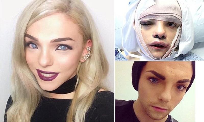 Шок: девушка-трансгендер выложила в сеть фото и видео  пластической операции! transgender, видео, операция, смена пола