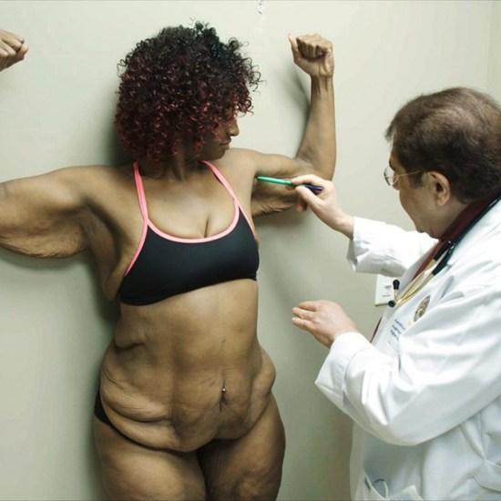 Главное что бы не вывалилось: обратная сторона похудения анорексия, диеты, похудение