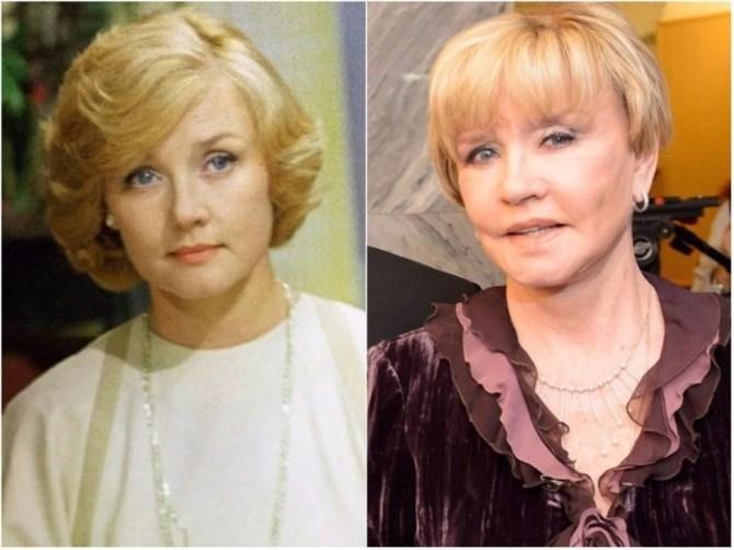 Вера Алентова звезды, знаменитости, лицо, пластическая операция, российские звезды, тогда и сейчас, хирург