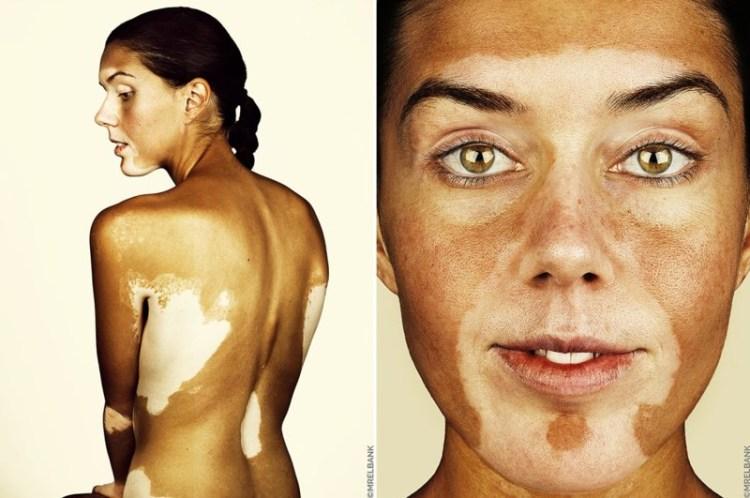 Витилиго и красота Витилиго, здоровые, кожа, косметика, люди
