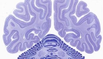 Rhesus monkey brain