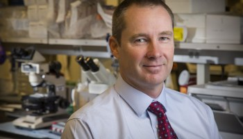 New study could point to solution for deadly immunotherapy side effects