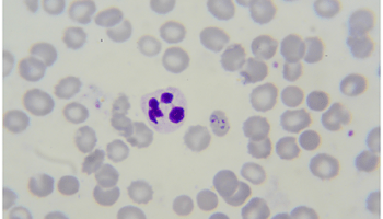 Malaria sample