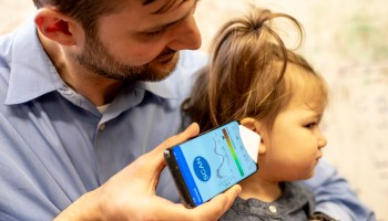 Say what? University of Washington researchers create smartphone app to detect ear infections