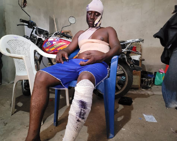 NPP coordinator left with fractured arm after attack from Ga West MCE's 'thugs' 3