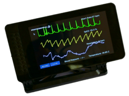 Connected Health: Open source IoT patient monitor