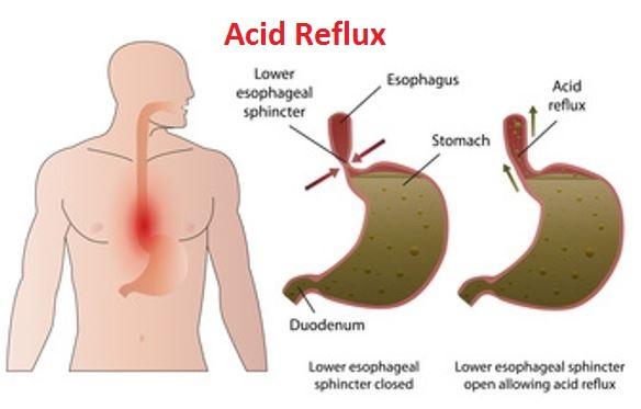 Acid Reflux Cause
