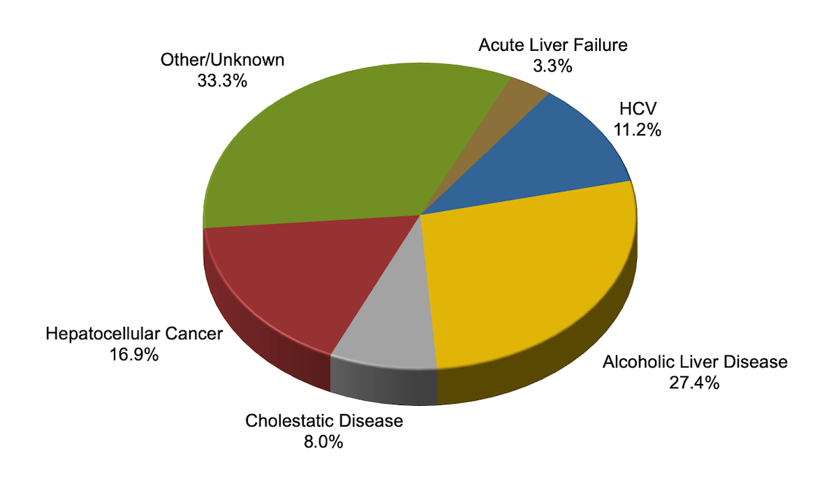 hight resolution of clinical characteristics of adult liver transplant recipients 2016
