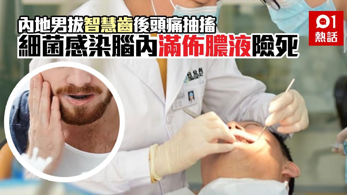 【咪以為小事】拔智慧齒後頭痛視力模糊 醫生開腦膿液噴出險死 香港01 熱爆話題