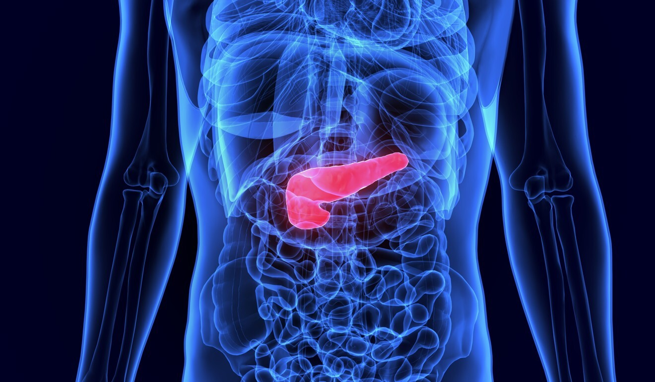 Diabetes is caused when the hormone insulin, produced by the pancreas (above, in red) – an organ of the digestive system – is unable to transfer the glucose from our blood into our cells, leading to high blood sugar levels. Photo: Shutterstock