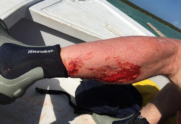 Shark bite horror after beast attack leaves Brit tourist