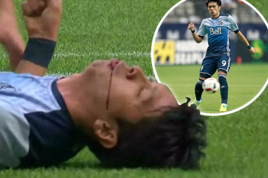 Vancouver striker Masato Kudo needs jaw surgery after in