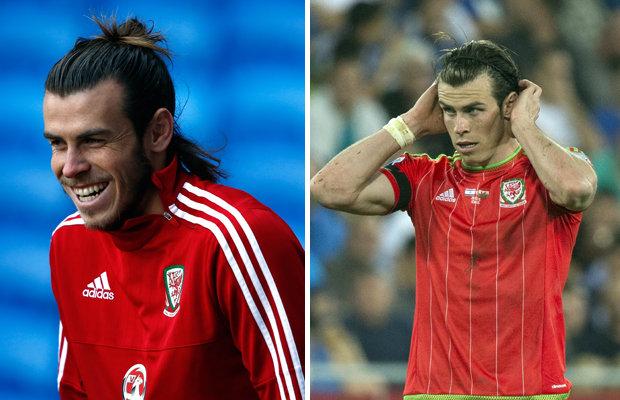 Euro 2016 Wales Gareth Bale Hair Loss Reveals Shocking
