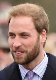 prince harry hair loss pics show