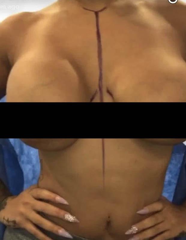 Jessica Dime before boob job