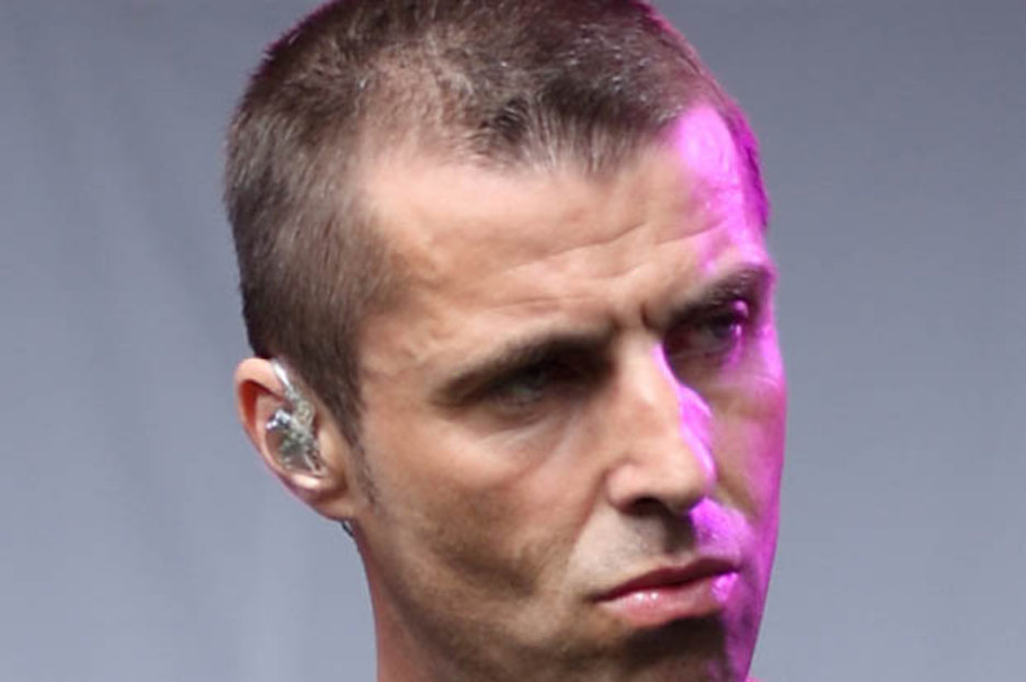 Oasis Liam Noel Gallagher Hair Transplants Bald Head Scalp
