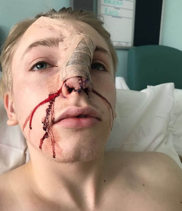 Aiden Noel in hospital