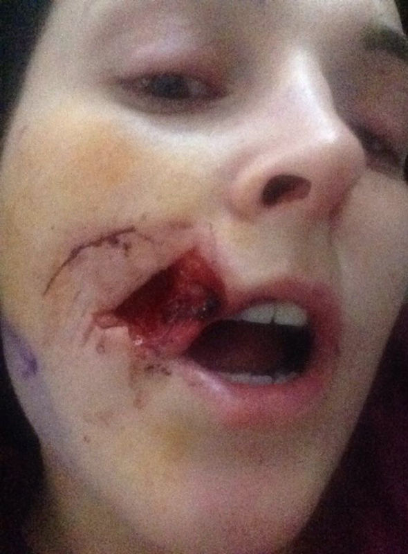 House party horror: Woman has face bitten off in vicious attack   UK   News   Express.co.uk