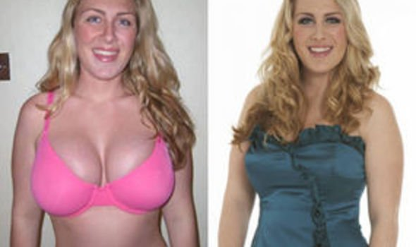 Fresh Start Sarah Before The Operation And Right With Her Trimmer Figure And New Outlook