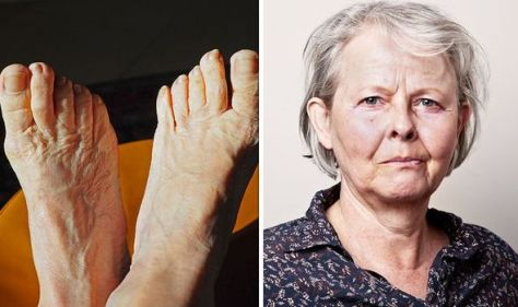 High cholesterol symptoms: How long are your toenails? A warning of artery disease