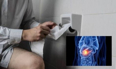 Pancreatic cancer symptoms: Signs of the disease to look out for when you go to the toilet
