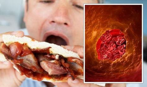 High cholesterol: What is the difference between good and bad cholesterol?