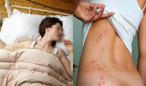 How to get rid of bed bugs: Experts warn a sign in your room could attract the nasty bugs