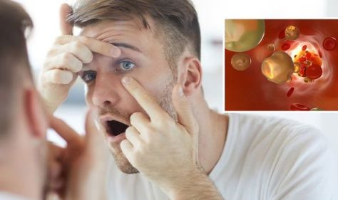 High cholesterol: The warning sign on your face that needs to be 'surgically removed'