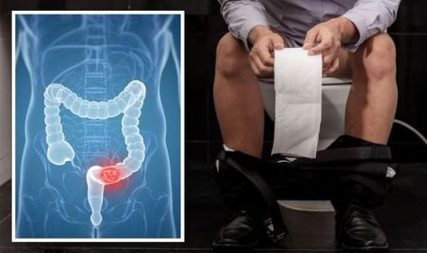 Cancer: The red flags when going to the toilet you shouldn't ignore - 'see your doctor'
