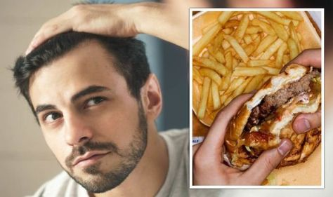 Hair loss diet: The 5 foods to avoid to stop your hair falling out